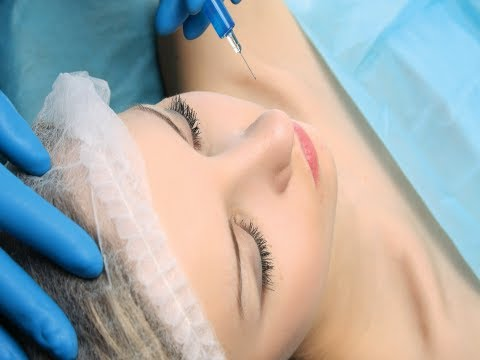 Does Botox prevent migraine? (Conditions AZ)